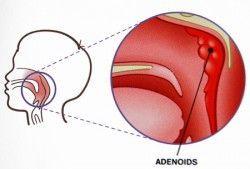 Аденоїди у дітей
