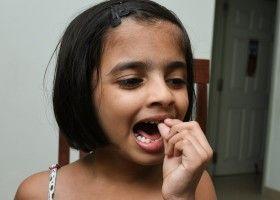 Що робити при карієсі молочних зубів?