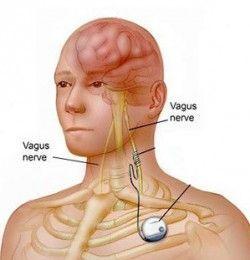 Що таке блукаючий нерв