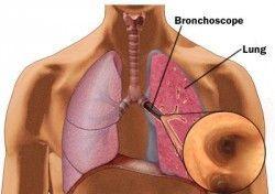 Що таке бронхоскопія