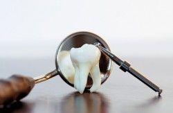 Що таке ретінірованний зуб