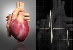 Що таке шунтування серця