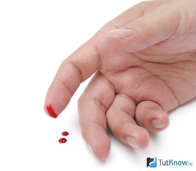 Кровотеча при невеликому порізі