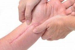 Як позбутися від шрамів