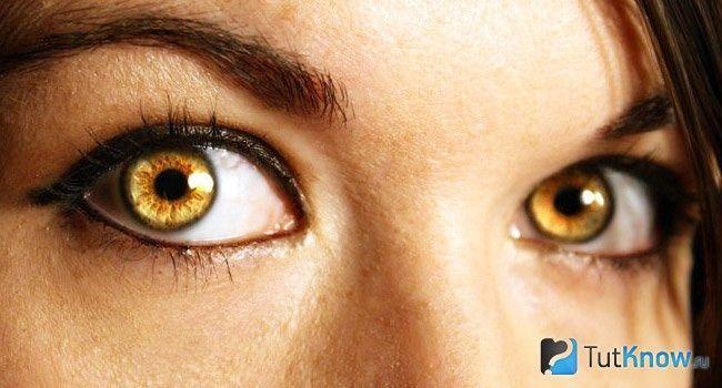 Жовті очі у людей