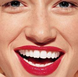 Як вибілювати зуби