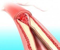 Як поліпшити кровообіг
