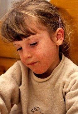 Кір у дітей, симптоми і лікування