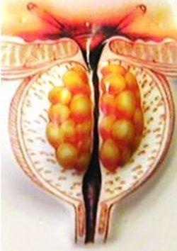 Лікування аденоми передміхурової залози