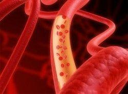 Лікування атеросклерозу