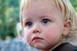 Лікування діатезу у дітей