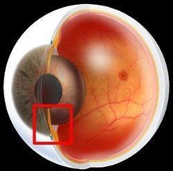 `Глаукома
