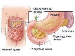 Лікування хронічного холециститу