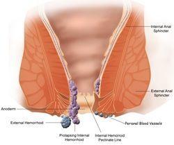 Лікування і профілактика геморою