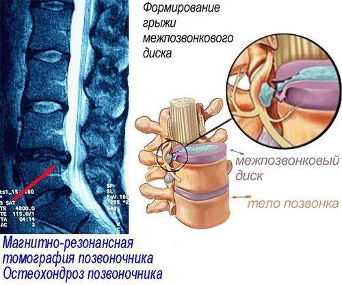 Лікування і профілактика остеохондрозу
