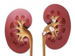 Лікування каменів у нирках народними засобами