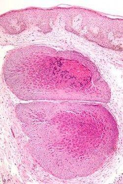 Лікування контагіозного молюска