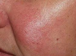 Лікування купероза