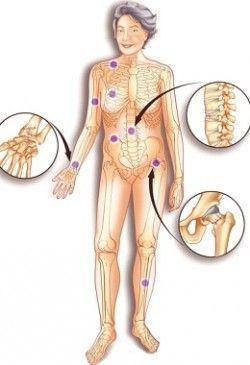 Лікування остеопорозу