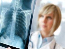Лікування пневмосклерозу