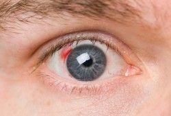 Лікування при крововиливі в око