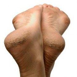 Лікування тріщин на п`ятах
