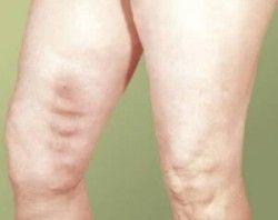 Лікування тромбофлебіту