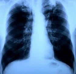 Лікування туберкульозу народними засобами