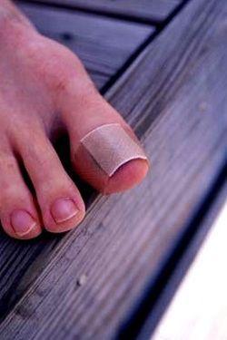Лікування врослого нігтя