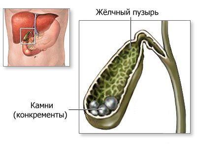 Лікування жовчнокам`яної хвороби