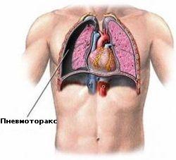 Перша і медична допомога при пневмотораксі