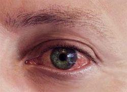 Почервоніння очей, корисні поради