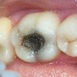`Зуб,