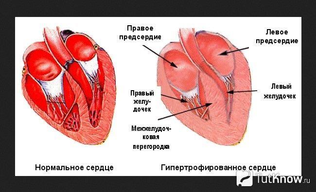 Схематичне зображення нормального і гіпертрофованого серця