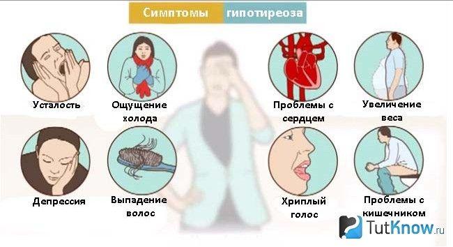 Схема симптомів гіпотиреозу