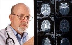 Симптоми і лікування інсульту