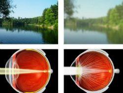 Симптоми і лікування катаракти
