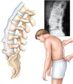 Спондиліт, симптоми і лікування