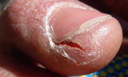 Тріскається шкіра на пальцях рук, що робити?