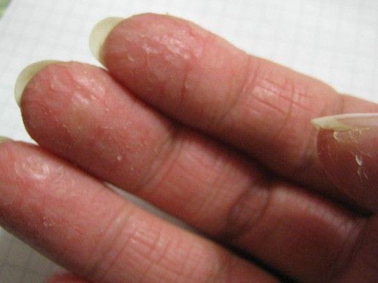 Причини виникнення тріщин на пальцях рук