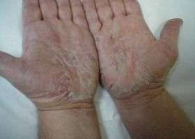 Тріскається шкіра на пальцях рук. Що робити?